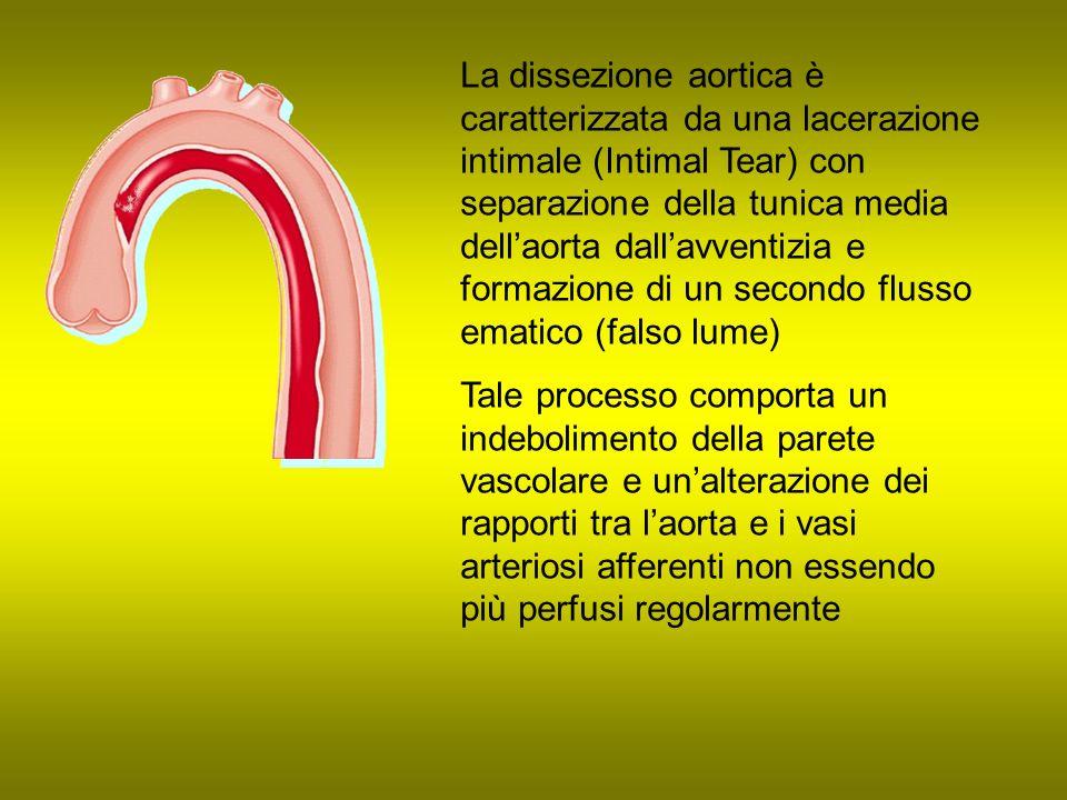 La dissezione aortica è caratterizzata da una lacerazione intimale (Intimal Tear) con separazione della tunica media dell'aorta dall'avventizia e formazione di un secondo flusso ematico (falso lume)