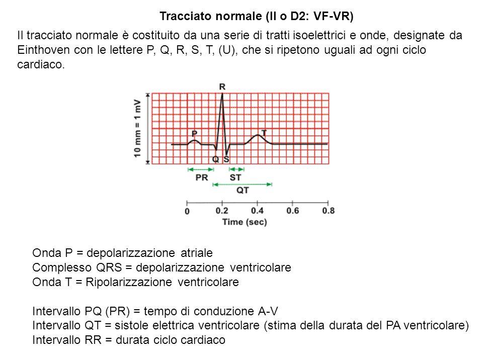 Tracciato normale (II o D2: VF-VR)