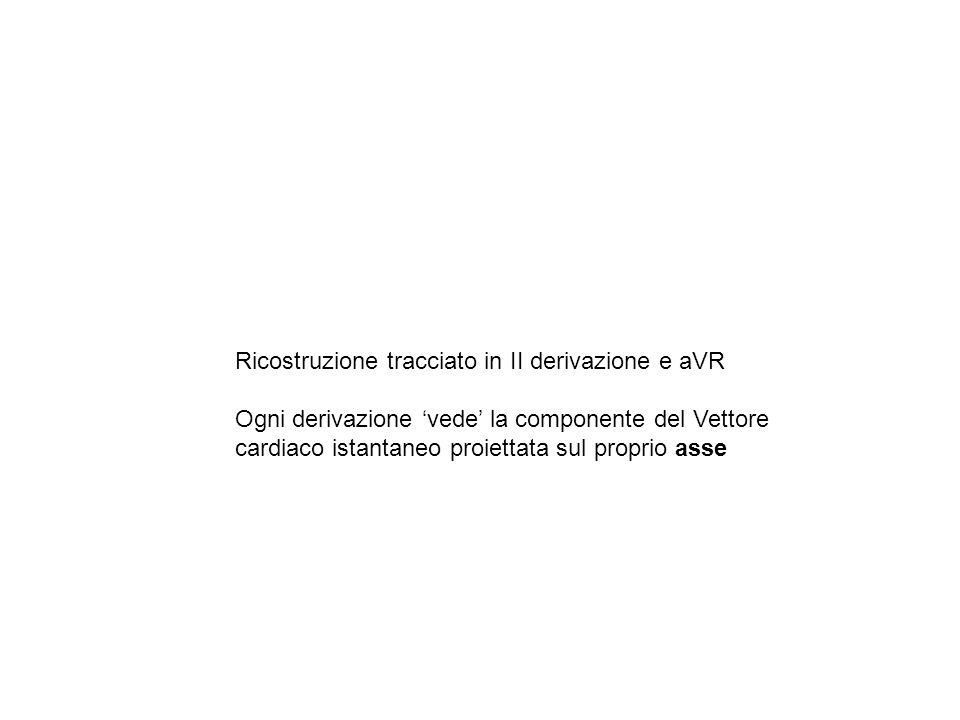 Ricostruzione tracciato in II derivazione e aVR