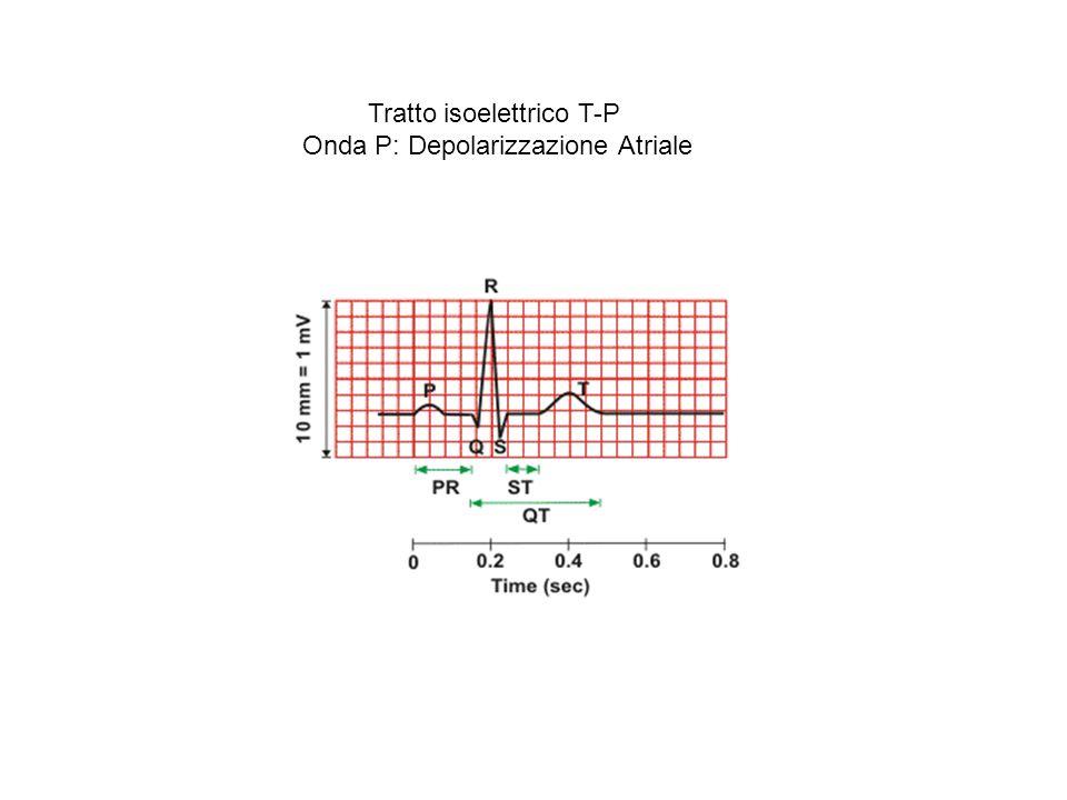 Tratto isoelettrico T-P Onda P: Depolarizzazione Atriale