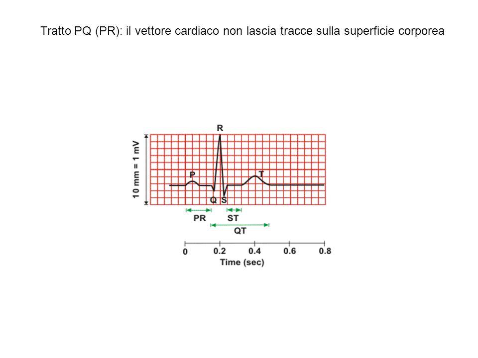Tratto PQ (PR): il vettore cardiaco non lascia tracce sulla superficie corporea