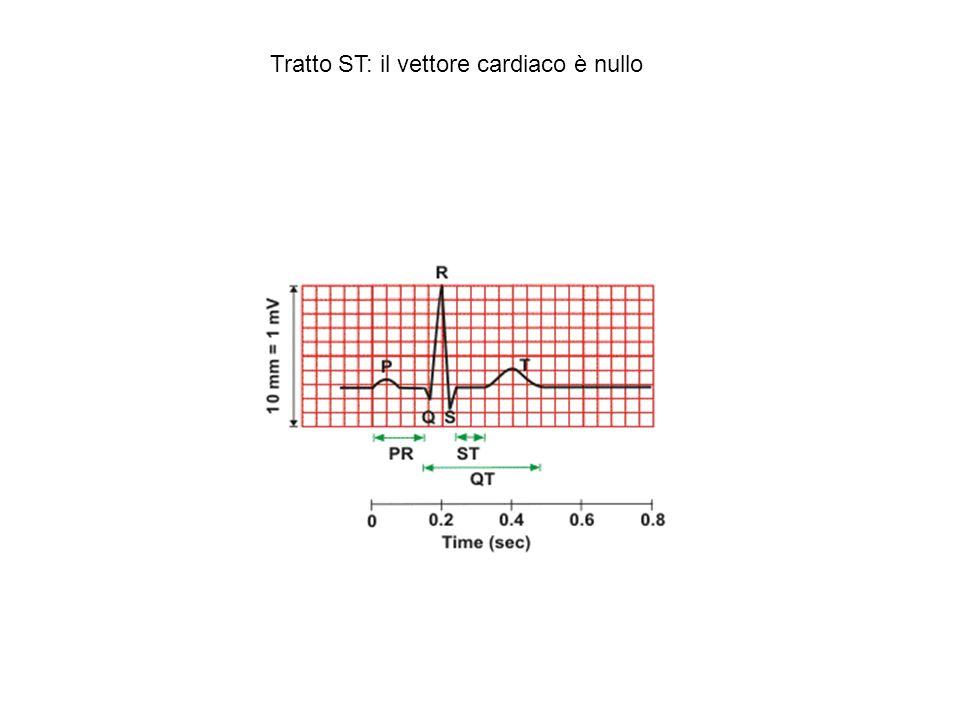 Tratto ST: il vettore cardiaco è nullo