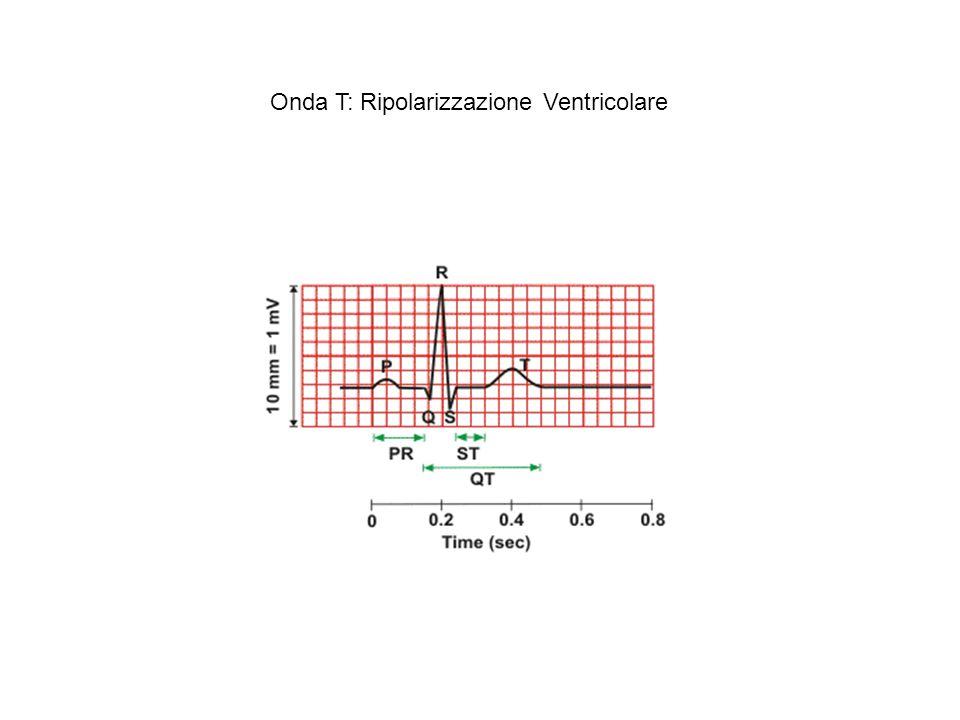 Onda T: Ripolarizzazione Ventricolare