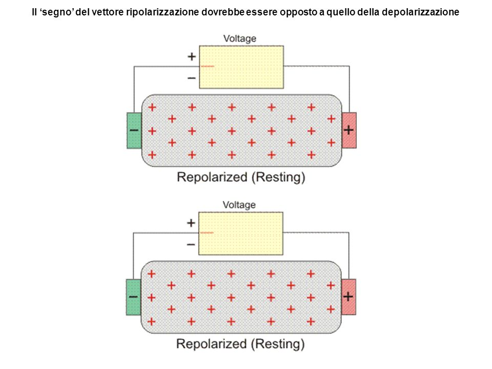 Il 'segno' del vettore ripolarizzazione dovrebbe essere opposto a quello della depolarizzazione