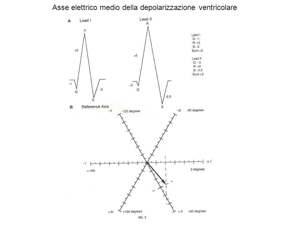 Asse elettrico medio della depolarizzazione ventricolare