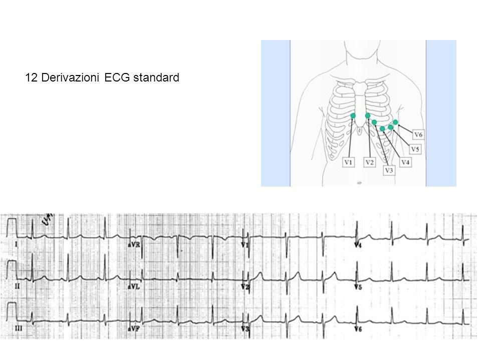 12 Derivazioni ECG standard