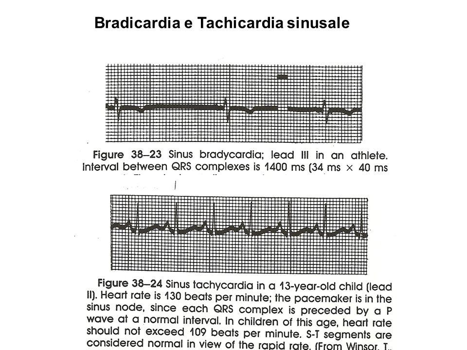Bradicardia e Tachicardia sinusale
