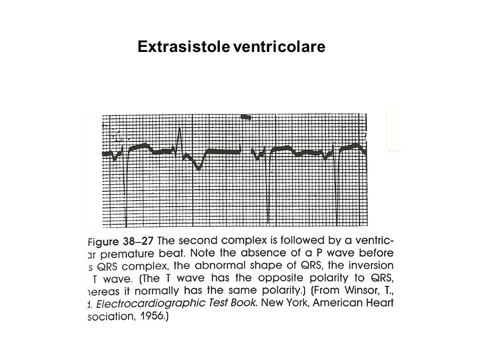 Extrasistole ventricolare