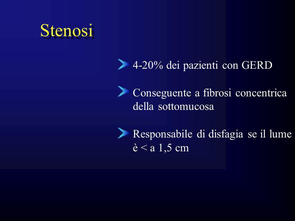 Stenosi 4-20% dei pazienti con GERD Conseguente a fibrosi concentrica