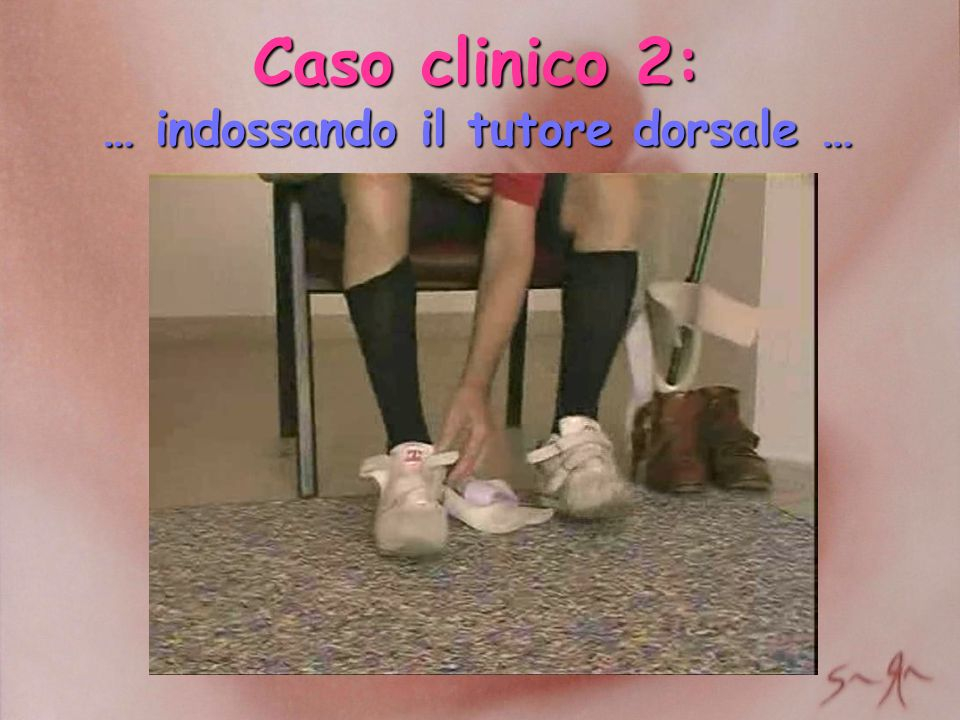 Caso clinico 2: … indossando il tutore dorsale …