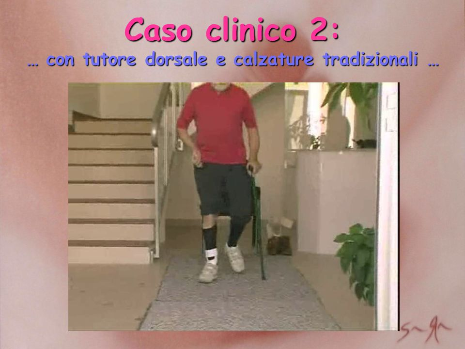 Caso clinico 2: … con tutore dorsale e calzature tradizionali …