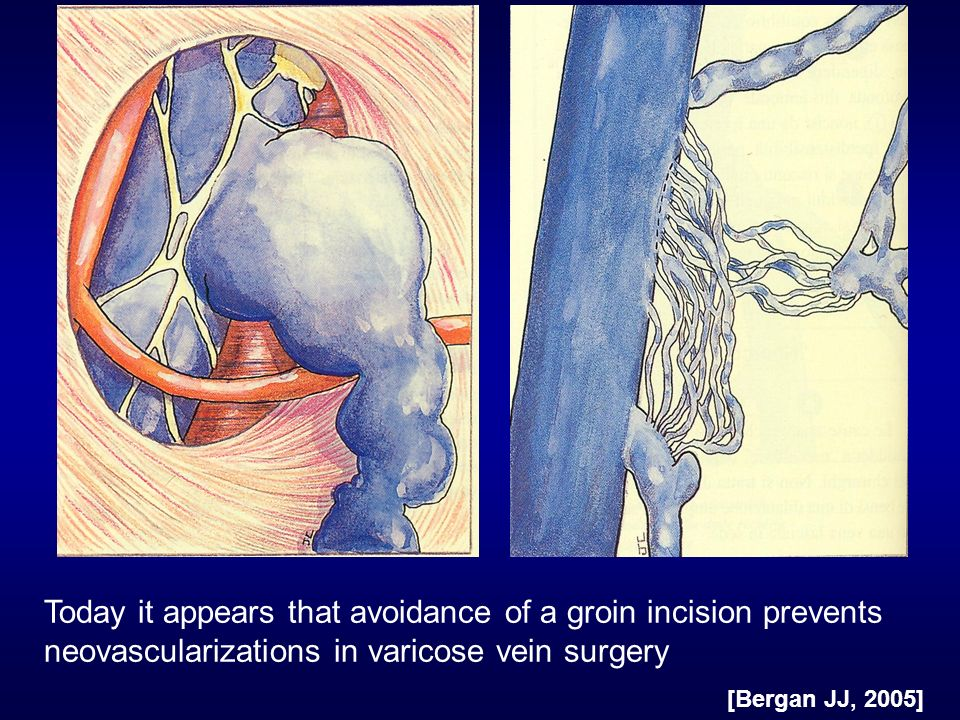 Today it appears that avoidance of a groin incision prevents neovascularizations in varicose vein surgery