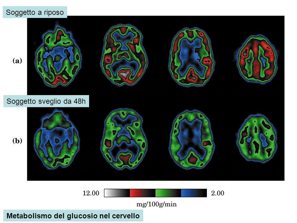 Soggetto a riposo Soggetto sveglio da 48h Metabolismo del glucosio nel cervello