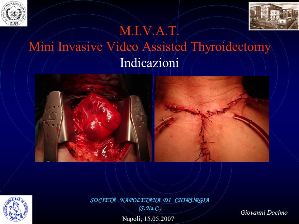 M.I.V.A.T. Mini Invasive Video Assisted Thyroidectomy Indicazioni
