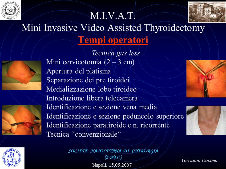 M.I.V.A.T. Mini Invasive Video Assisted Thyroidectomy Tempi operatori