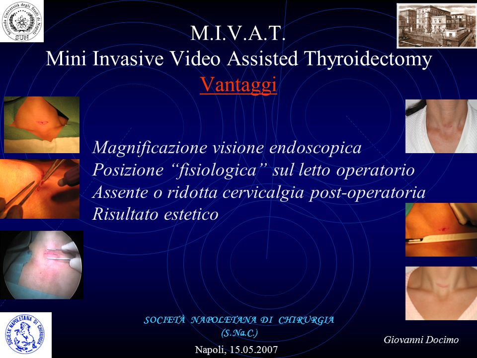 M.I.V.A.T. Mini Invasive Video Assisted Thyroidectomy Vantaggi