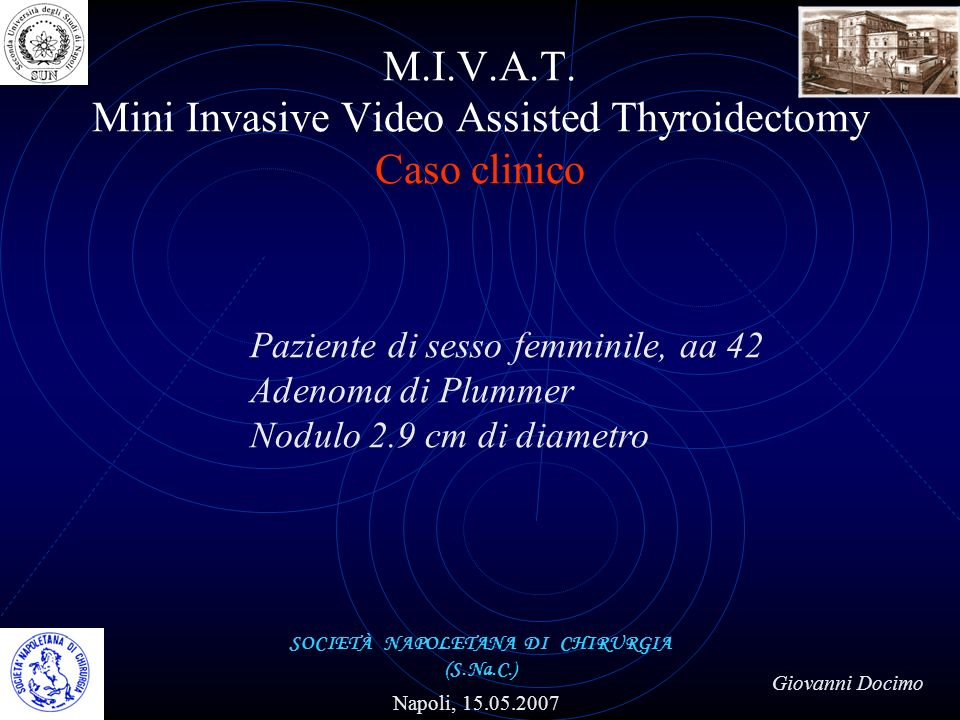 M.I.V.A.T. Mini Invasive Video Assisted Thyroidectomy Caso clinico