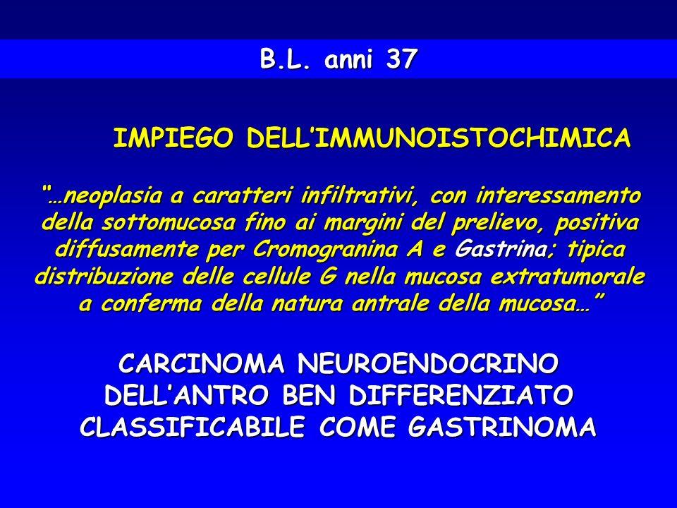 CARCINOMA NEUROENDOCRINO DELL'ANTRO BEN DIFFERENZIATO
