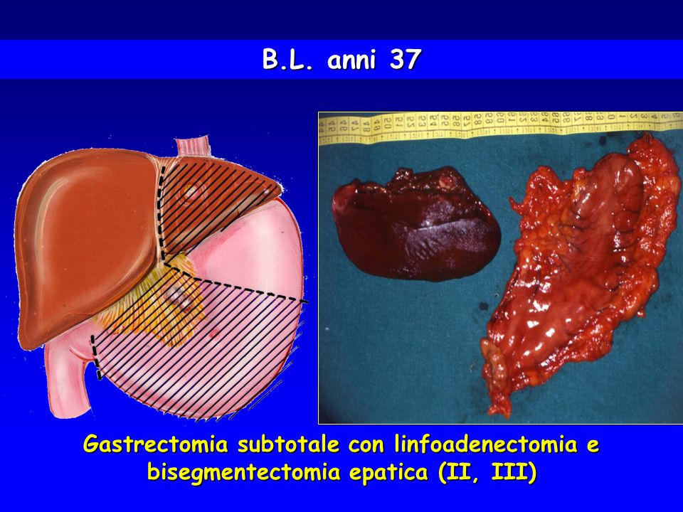 B.L. anni 37 Gastrectomia subtotale con linfoadenectomia e bisegmentectomia epatica (II, III)