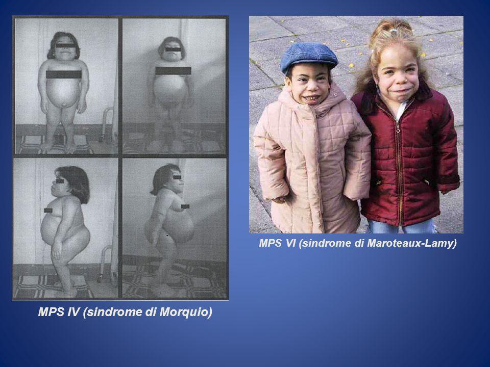 MPS VI (sindrome di Maroteaux-Lamy) MPS IV (sindrome di Morquio)