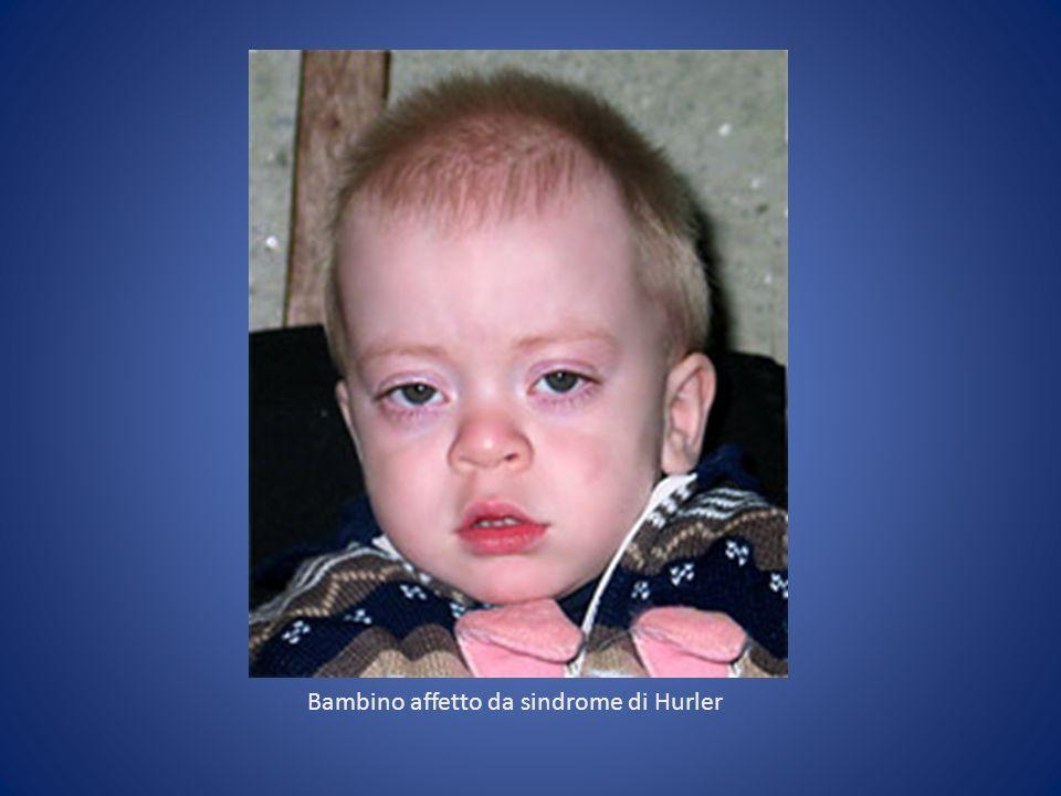 Bambino affetto da sindrome di Hurler