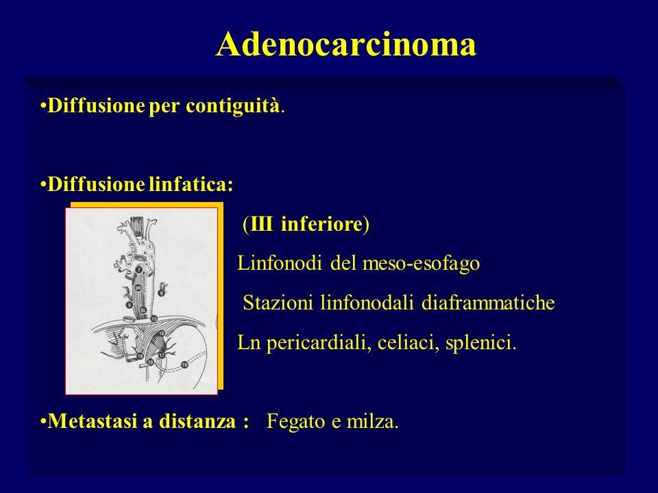 Adenocarcinoma Diffusione per contiguità. Diffusione linfatica: