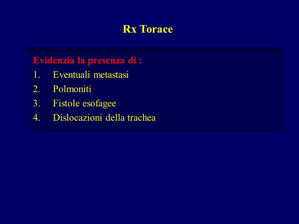 Rx Torace Evidenzia la presenza di : Eventuali metastasi Polmoniti