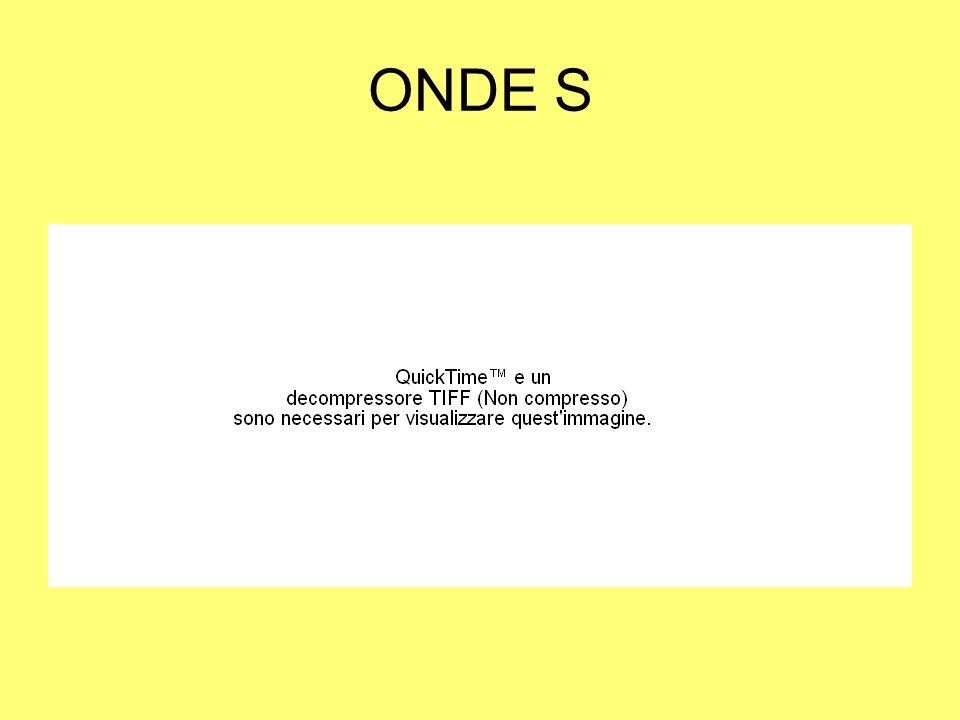 ONDE S