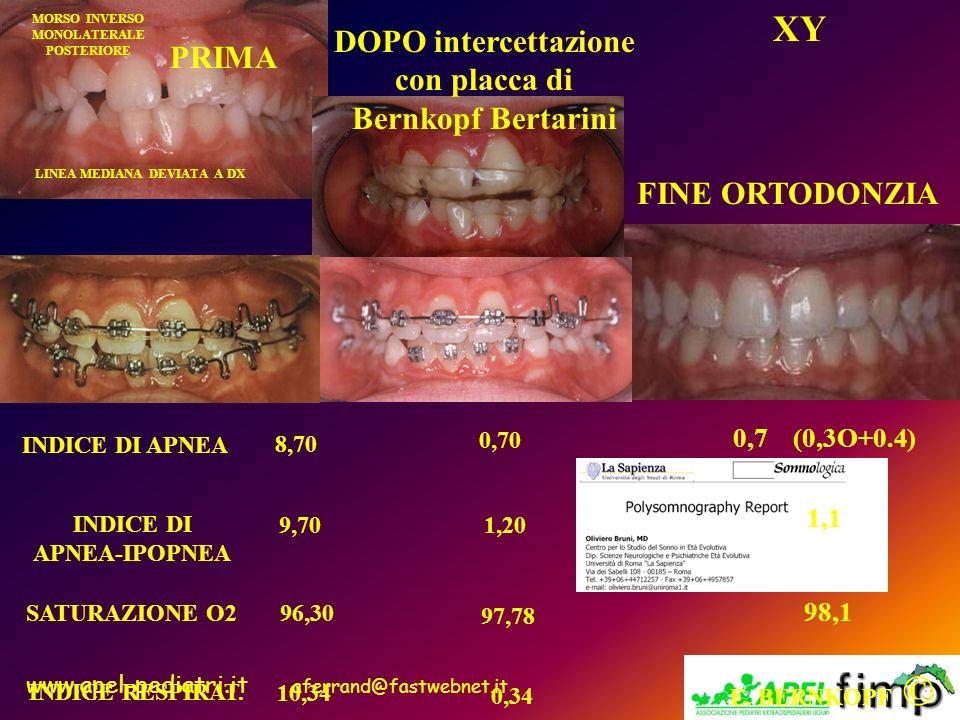 XY DOPO intercettazione con placca di Bernkopf Bertarini PRIMA