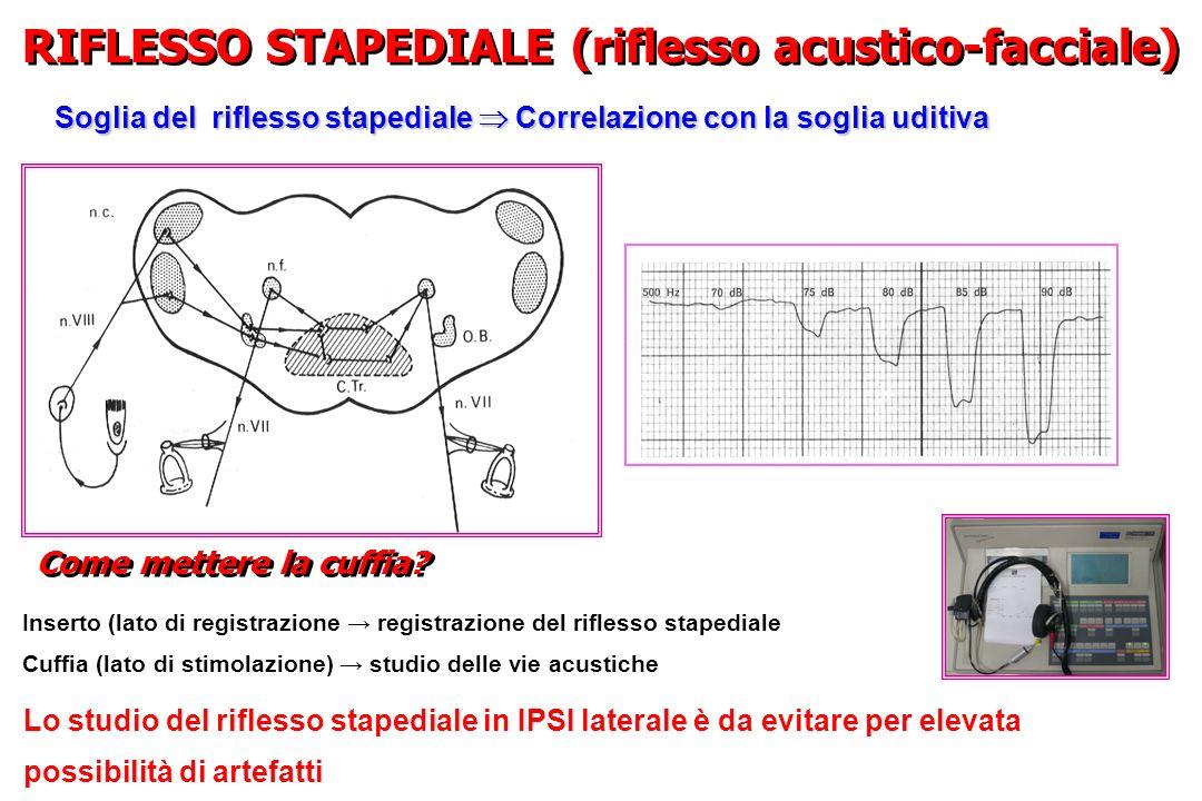 RIFLESSO STAPEDIALE (riflesso acustico-facciale)