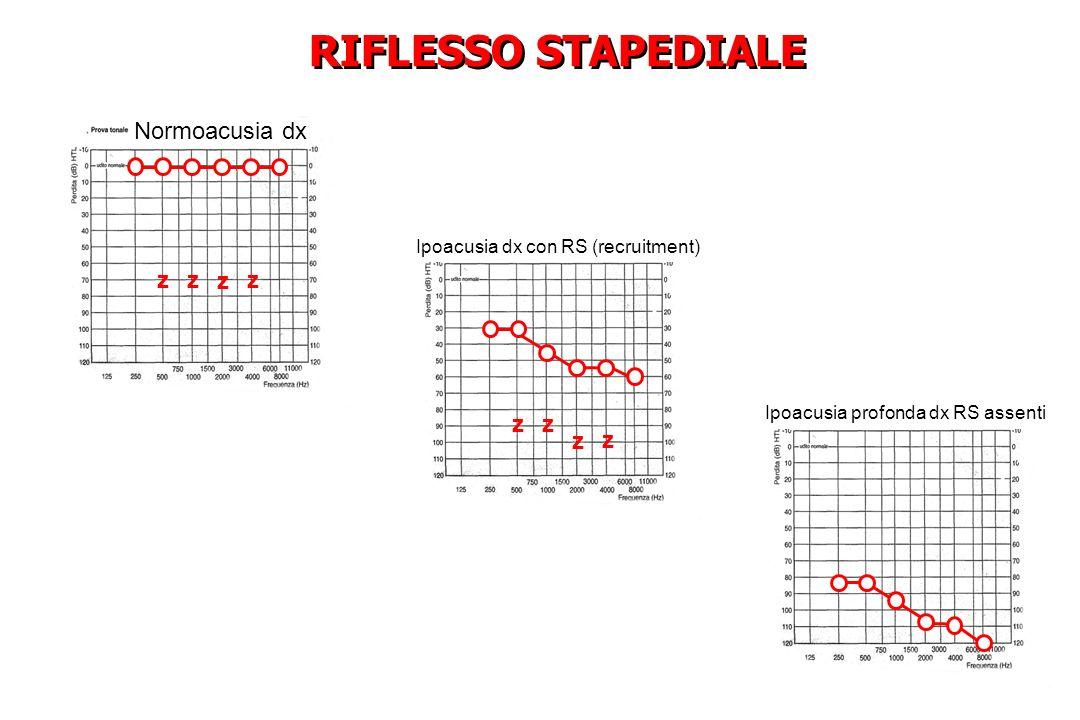 RIFLESSO STAPEDIALE Normoacusia dx z z