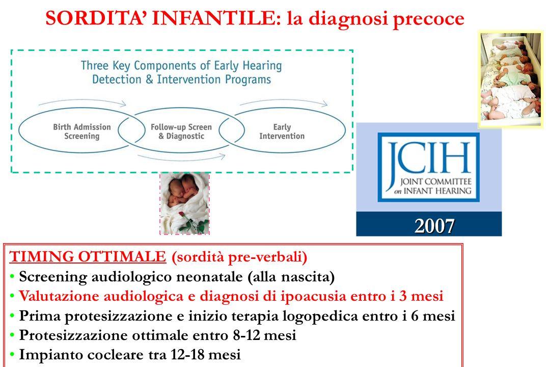 SORDITA' INFANTILE: la diagnosi precoce