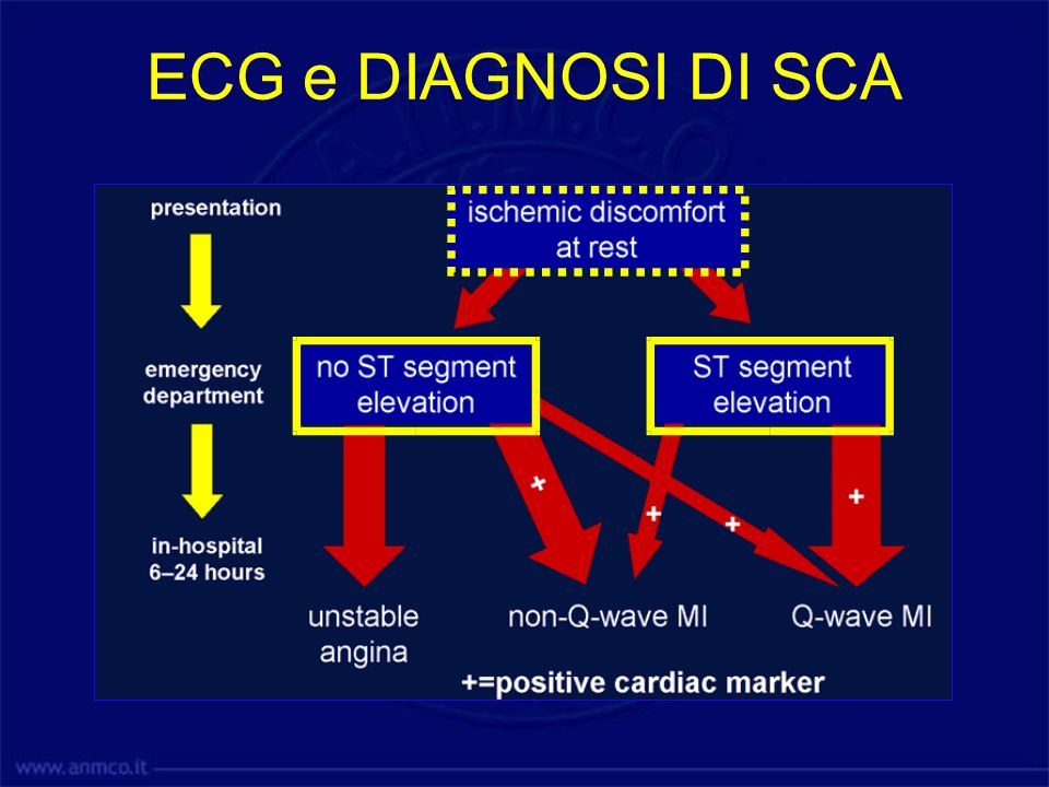 ECG e DIAGNOSI DI SCA