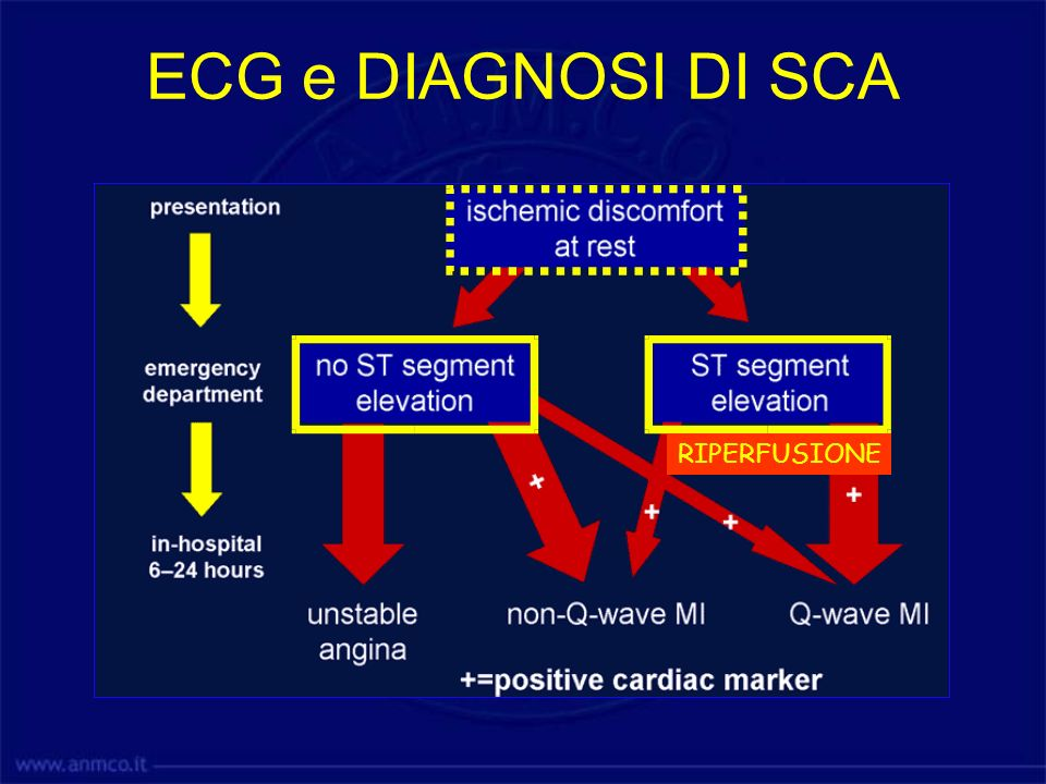ECG e DIAGNOSI DI SCA RIPERFUSIONE