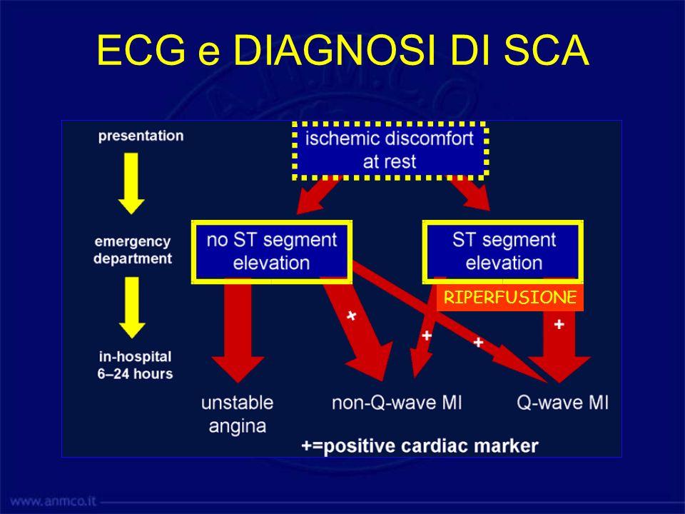 ECG e DIAGNOSI DI SCA RIPERFUSIONE