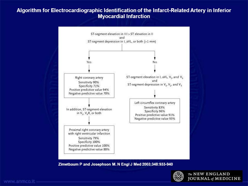 Algorithm for Electrocardiographic Identification of the Infarct-Related Artery in Inferior Myocardial Infarction
