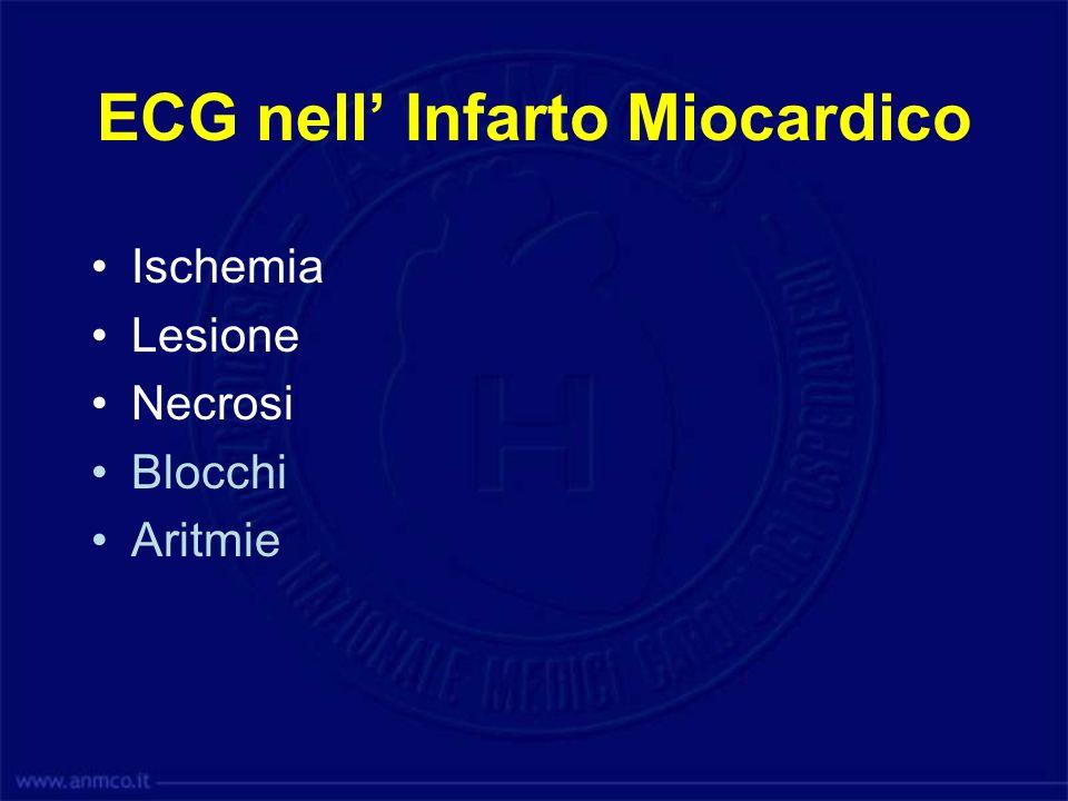 ECG nell' Infarto Miocardico