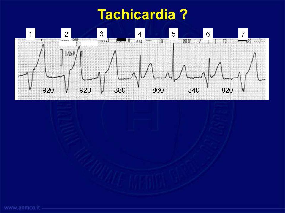 Tachicardia 1. 2. 3. 4. 5. 6. 7. 920. 920. 880. 860. 840. 820. Tachicardia Ventricolare Lenta.
