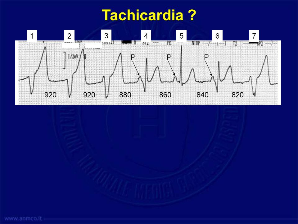 Tachicardia 1. 2. 3. 4. 5. 6. 7. P. P. P. 920. 920. 880. 860. 840. 820. Tachicardia Ventricolare Lenta.