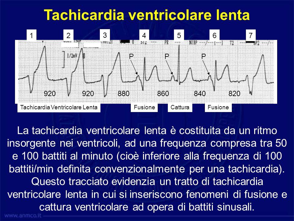 Tachicardia ventricolare lenta