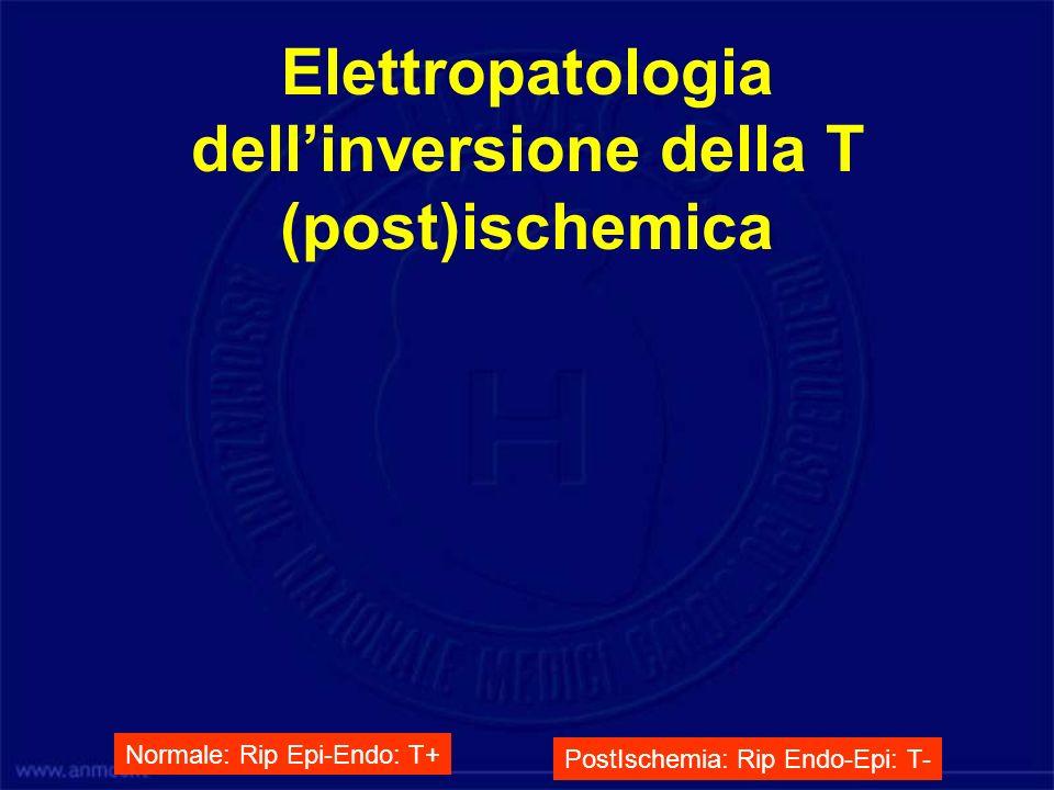 Elettropatologia dell'inversione della T (post)ischemica