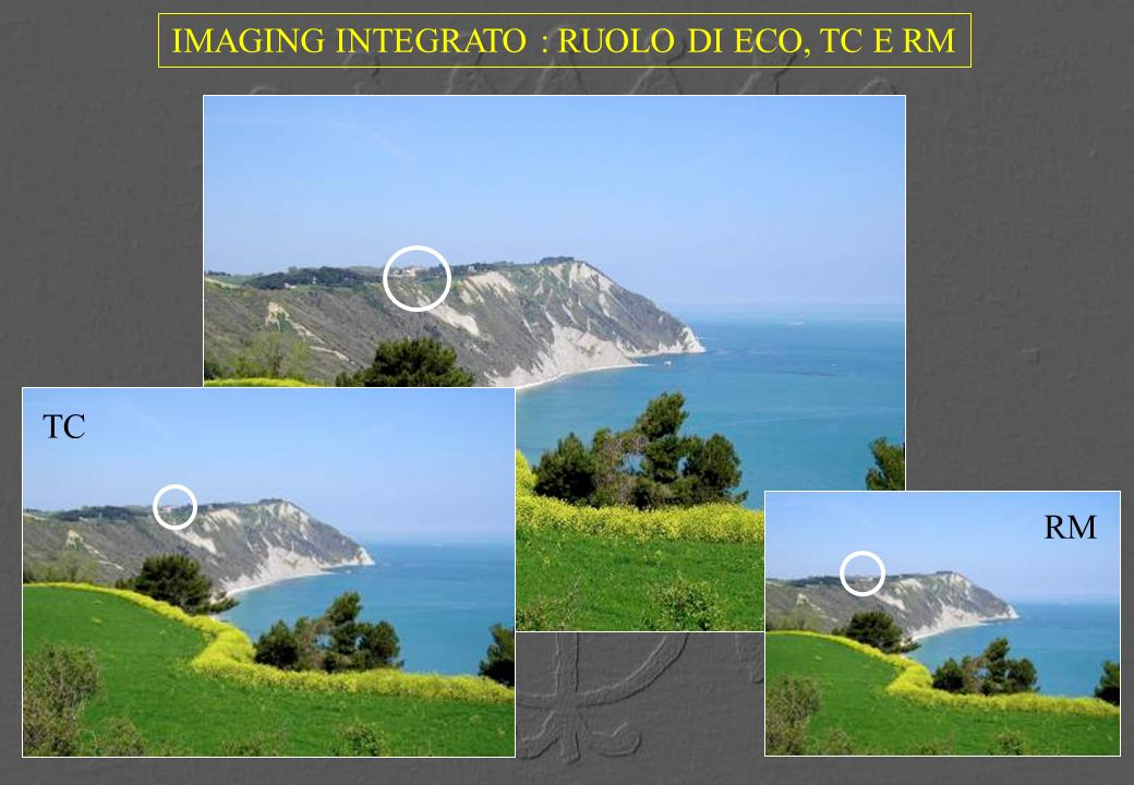 IMAGING INTEGRATO : RUOLO DI ECO, TC E RM