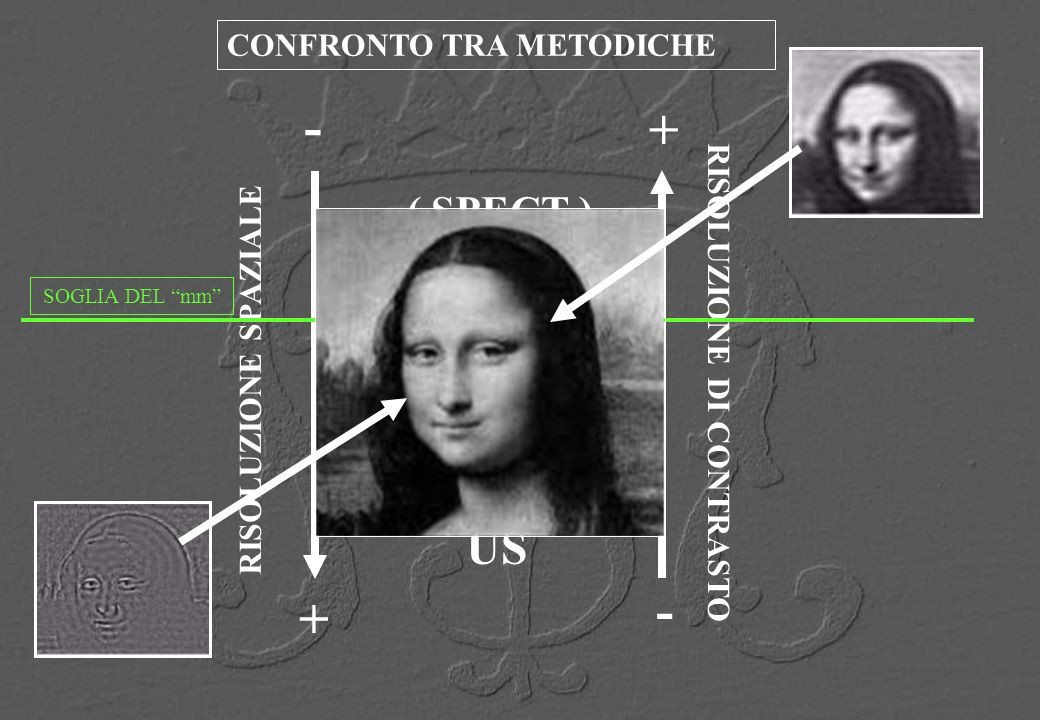 - + + - MR CT US ( SPECT ) CONFRONTO TRA METODICHE