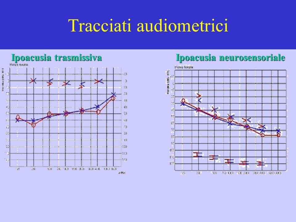 Tracciati audiometrici