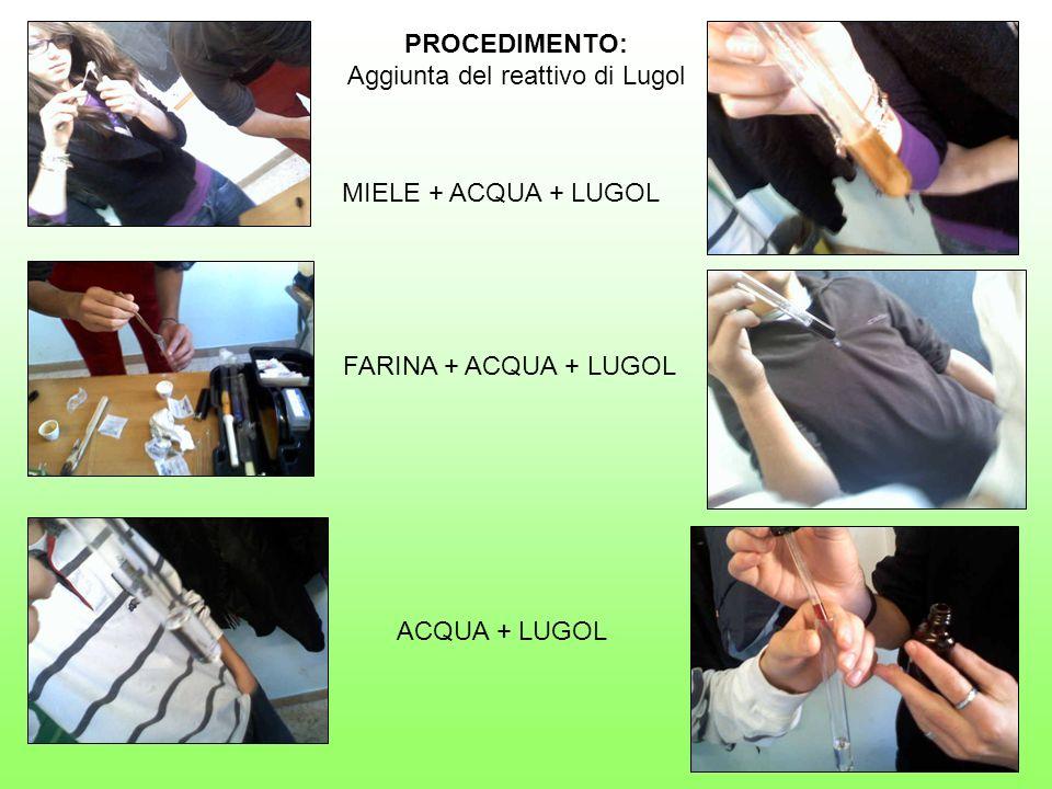 Aggiunta del reattivo di Lugol