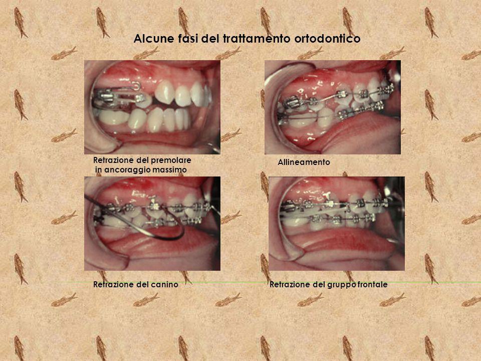 Alcune fasi del trattamento ortodontico
