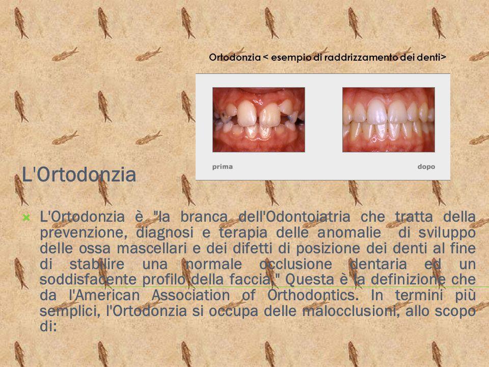 Ortodonzia < esempio di raddrizzamento dei denti>