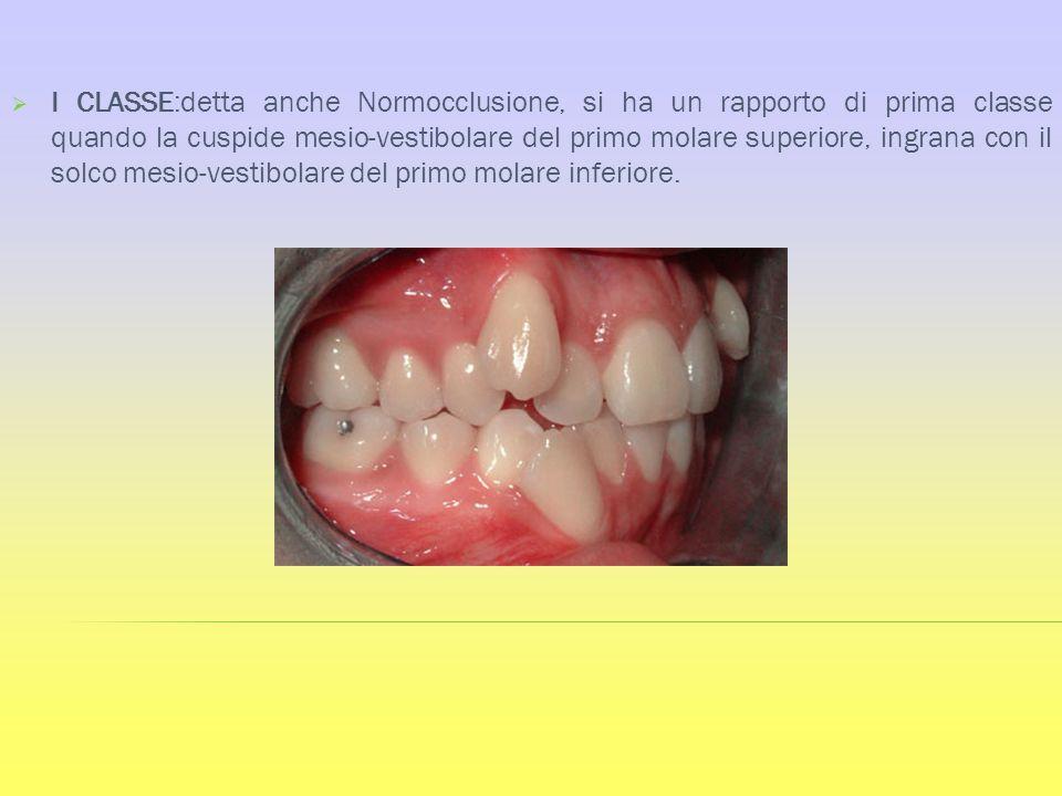I CLASSE:detta anche Normocclusione, si ha un rapporto di prima classe quando la cuspide mesio-vestibolare del primo molare superiore, ingrana con il solco mesio-vestibolare del primo molare inferiore.