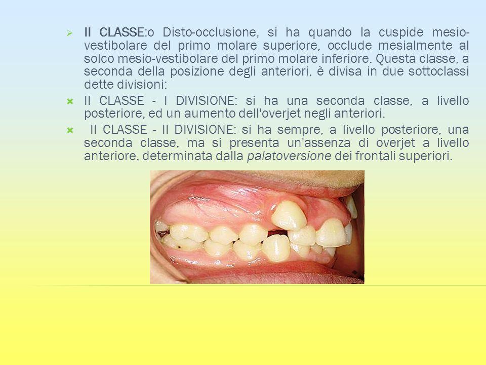 II CLASSE:o Disto-occlusione, si ha quando la cuspide mesio-vestibolare del primo molare superiore, occlude mesialmente al solco mesio-vestibolare del primo molare inferiore. Questa classe, a seconda della posizione degli anteriori, è divisa in due sottoclassi dette divisioni: