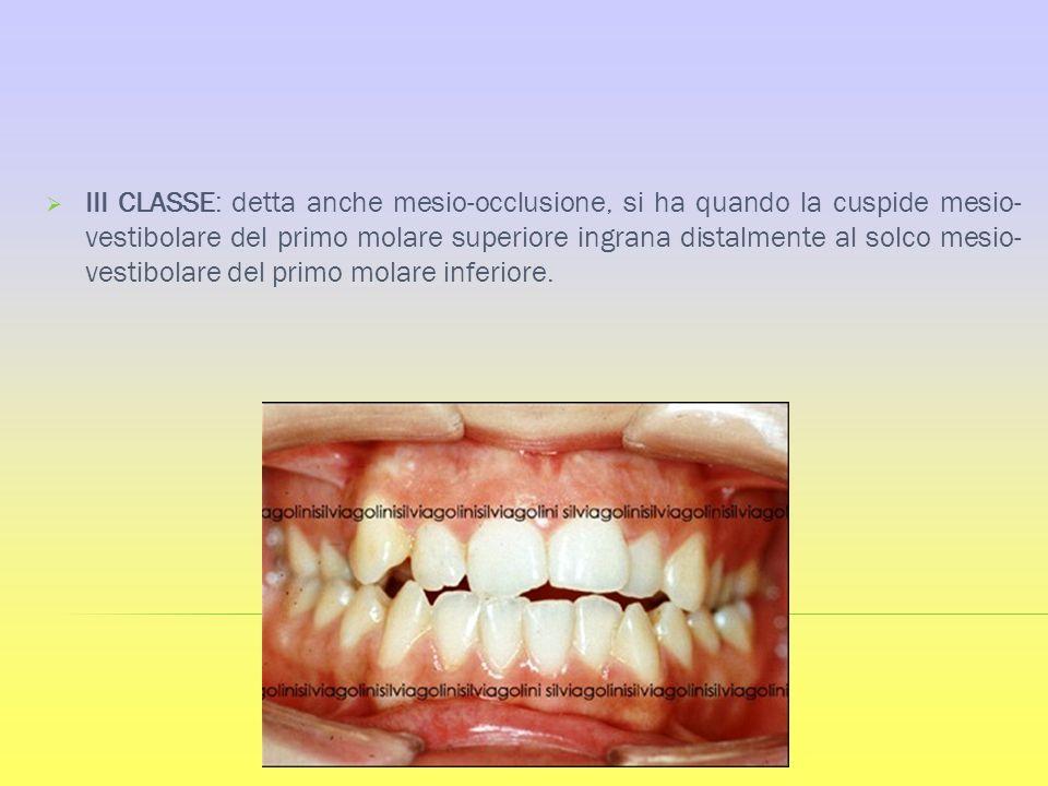 III CLASSE: detta anche mesio-occlusione, si ha quando la cuspide mesio-vestibolare del primo molare superiore ingrana distalmente al solco mesio-vestibolare del primo molare inferiore.